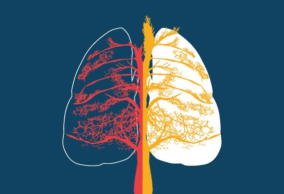Le Giornate Pneumologiche Irpine. La Gestione del Paziente con Malattie Respiratorie Croniche